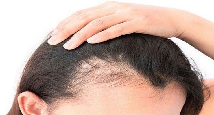 Female-Pattern-Baldness